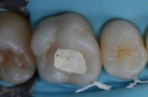 Можно ли курить после пломбирования зуба: световой пломбой