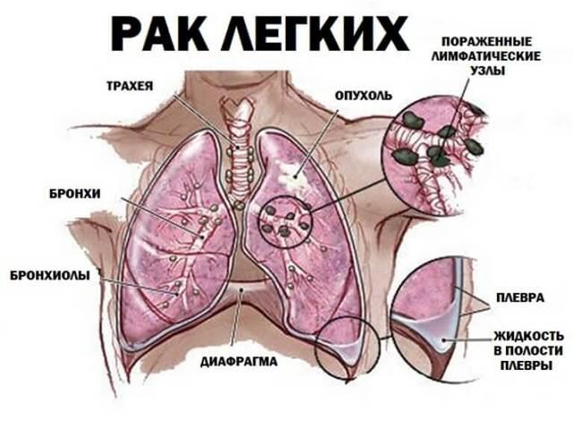 Бросил курить болит грудная клетка: справа, слева