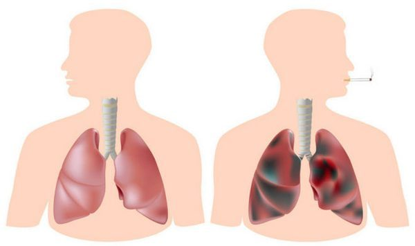 Кашель от курения: как избавиться, симптомы и лечение