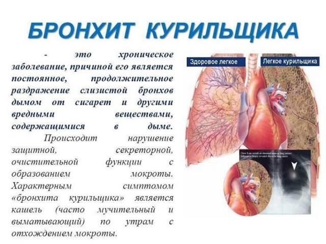 Бронхит курильщика: симптомы и лечение, как лечить