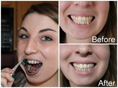 Зубы курильщика: как курение влияет, желтеют, влияние чифира и сигарет