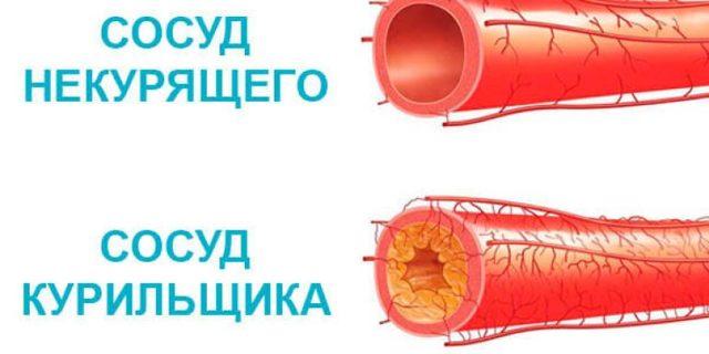 Действие никотина: механизм, влияние на организм, сосуды