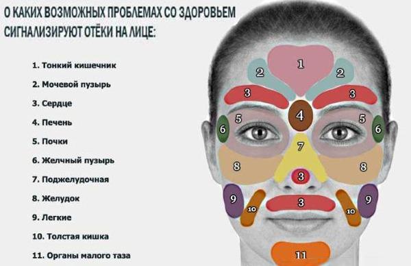 Как снять отек с лица: убрать отечность, быстро избавиться