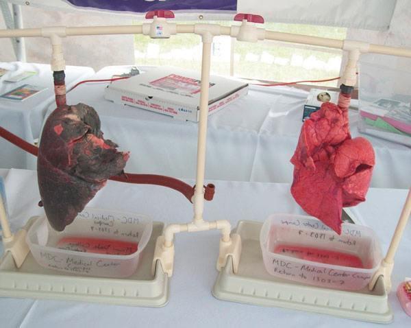 Как курение влияет на сердце: бросил курить, болит, влияние, после