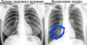 Флюорография курильщика и здорового человека, легкие, что покажет