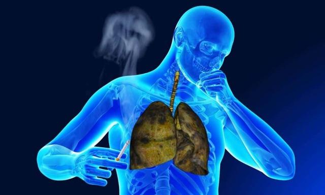 Очищение легких после отказа от курения: как очищаются, сколько