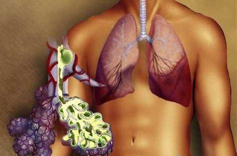Можно ли курить при пневмонии легких: курение, после, у взрослых
