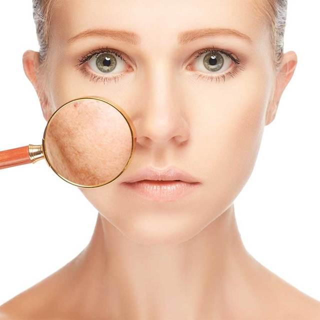 Как курение влияет на кожу лица: после отказа от курения, влияние