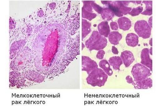 Сколько живут с раком легких: симптомы, метастазами, мелкоклеточный