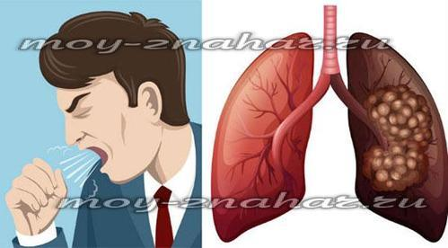 Как восстановить легкие после курения: длительного, восстановление