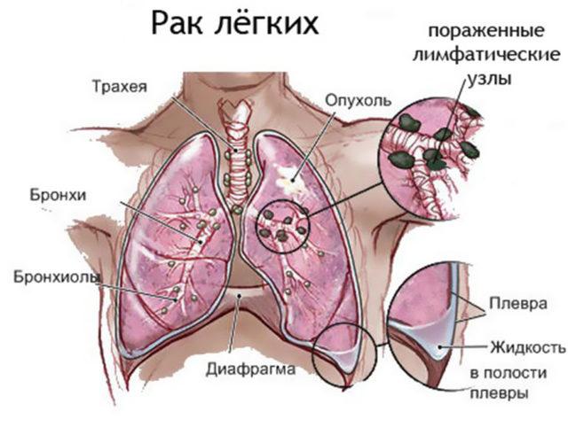 Смертельная доза никотина для человека: сколько нужно выкурить