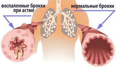 Пропиленгликоль: вред для организма человека, при вдыхании