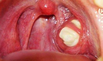 Рак гортани от курения: горла, злокачественная опухоль